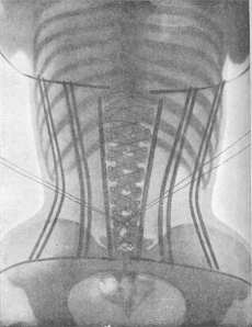corset4444